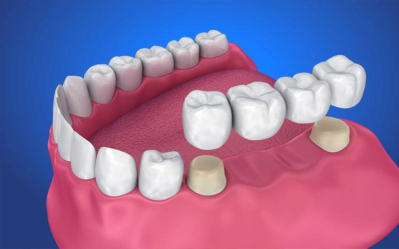 dental bridges st albert