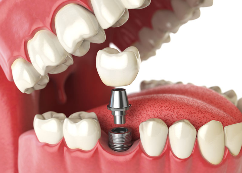 dental implants st albert
