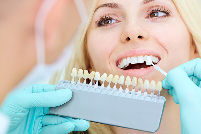 dental veneers st albert