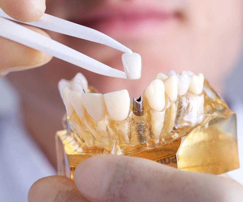 implant restorations st albert