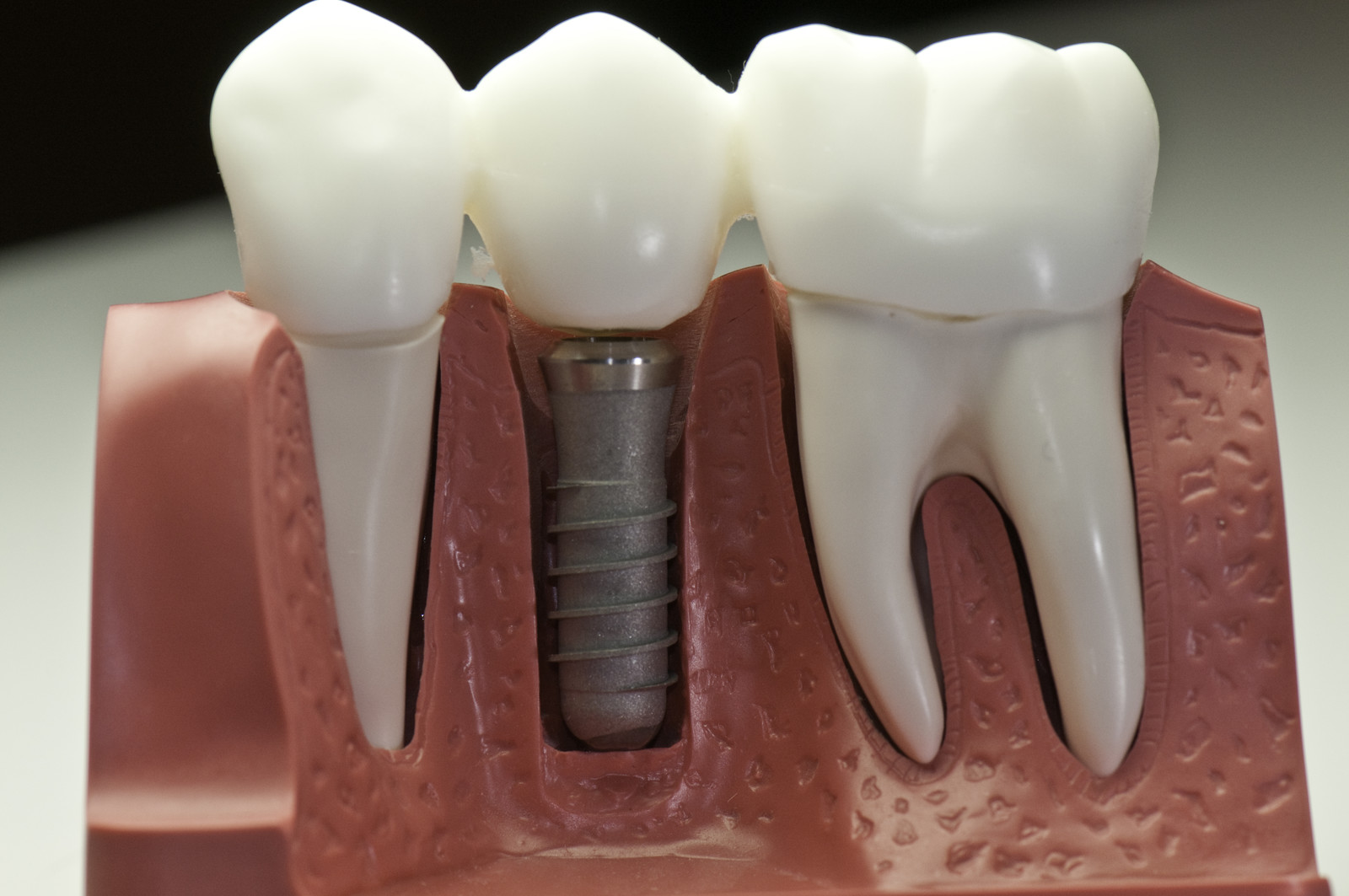 You Are Ready For Dental Implants If...