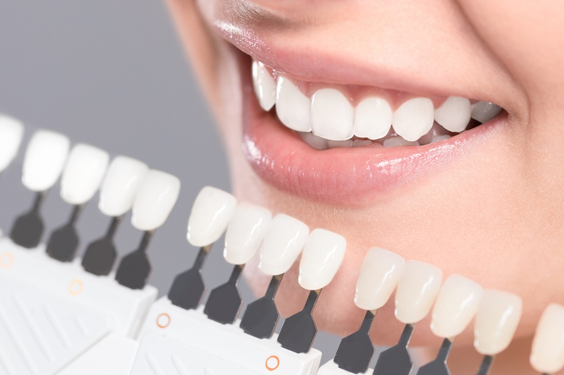 what are dental veneers and how do they work
